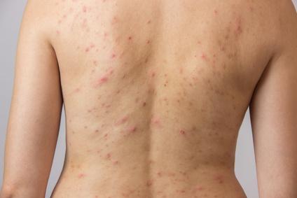 にきびで私たちを苦しめる細菌、アクネ菌