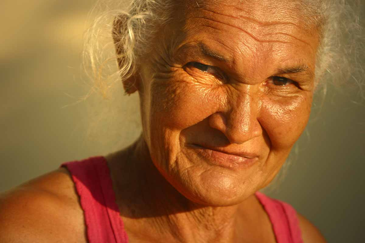 老化が進行すると、皮ふの細菌の多様性は増加します