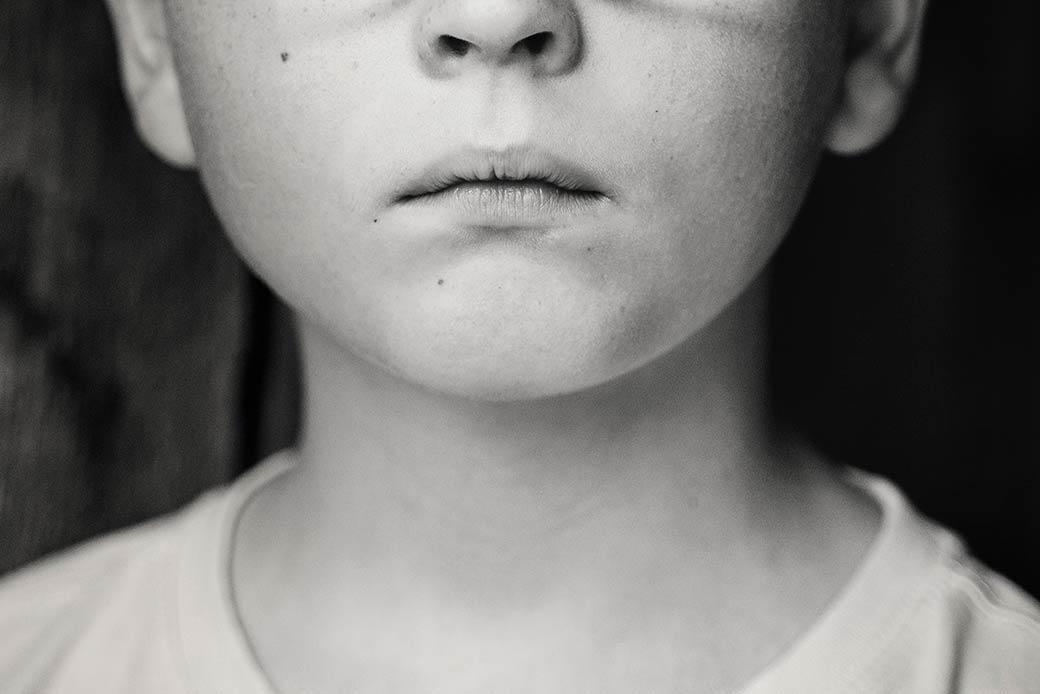 自閉症が消化管マイクロバイオームの変化と相関